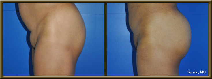 Mons Pubis Liposuction Before and After Pictures Orlando, FL