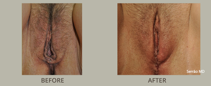 Perineoplasty Before and After Pictures Orlando, FL