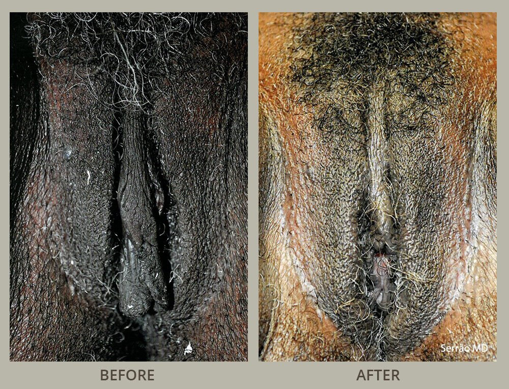 Genital Bleaching Before And After Pictures